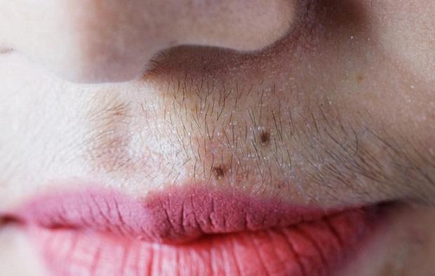 Nữ giới mắc bệnh phụ khoa thường dễ gặp phải 4 triệu chứng xấu trên đôi môi, check xem bạn có gặp phải triệu chứng nào không - ảnh 4