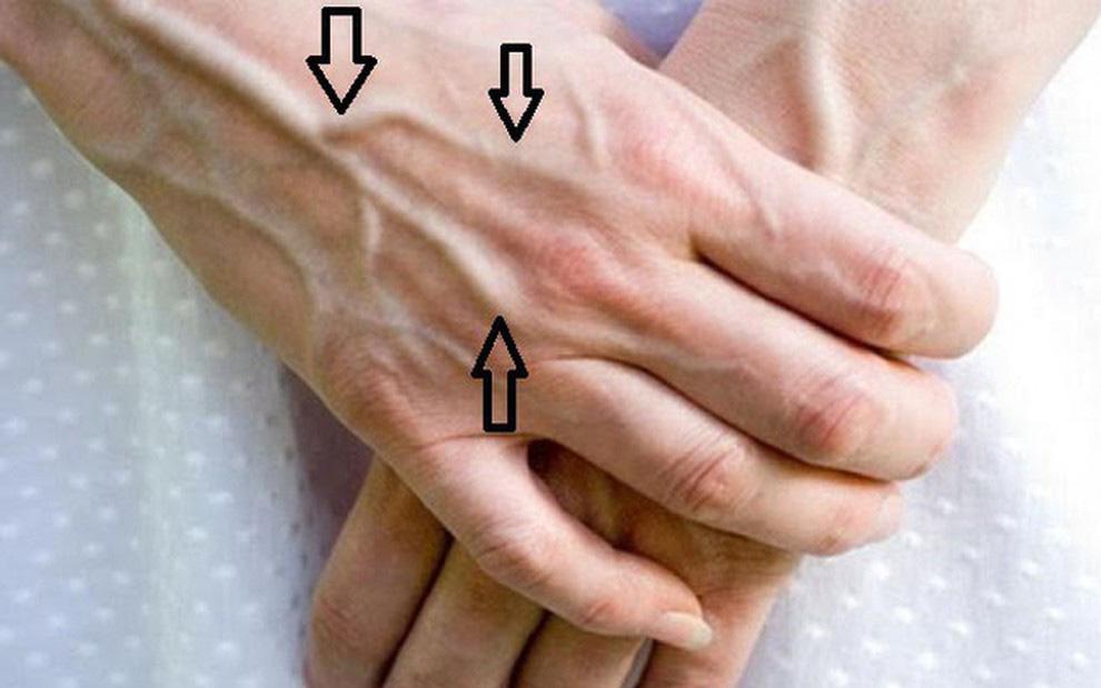 5 đặc điểm lạ xuất hiện trên bàn tay có thể là tín hiệu cảnh báo nguy cơ mắc bệnh xơ gan