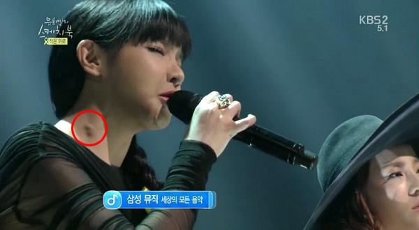 Gương mặt sưng phù đeo bám Park Bom suốt nhiều năm cứ tưởng là do dao kéo, nhưng sự thật phía sau khiến ai cũng xót xa - ảnh 5