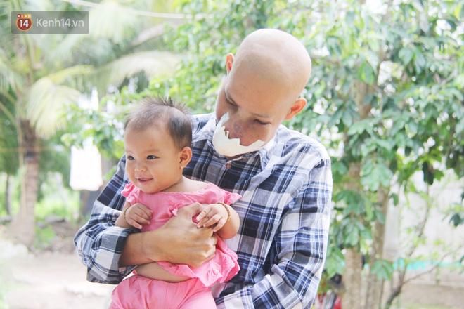 Bước đường cùng của người cha bị ung thư hốc mũi ôm 2 đứa con thơ dại: Con sợ cha chết, không sống cùng tụi con nữa - ảnh 19