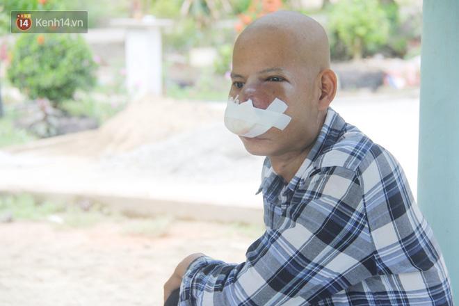 Bước đường cùng của người cha bị ung thư hốc mũi ôm 2 đứa con thơ dại: Con sợ cha chết, không sống cùng tụi con nữa - ảnh 16