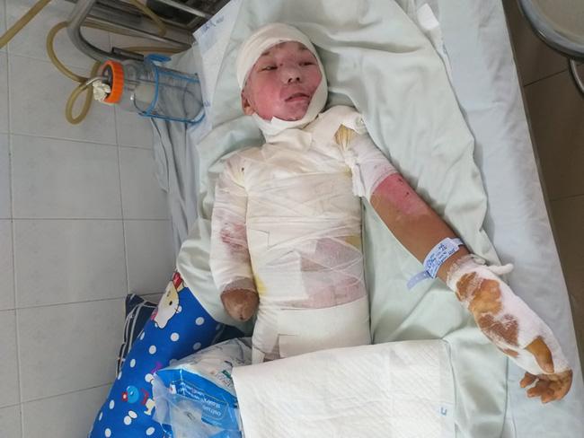 Trèo lên cột điện bắt chim, bé trai 12 tuổi bị điện giật phải cắt bỏ tay chân, tương lai mịt mù - ảnh 1