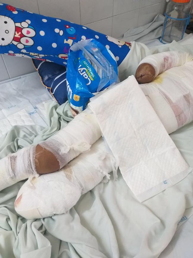 Trèo lên cột điện bắt chim, bé trai 12 tuổi bị điện giật phải cắt bỏ tay chân, tương lai mịt mù - ảnh 2