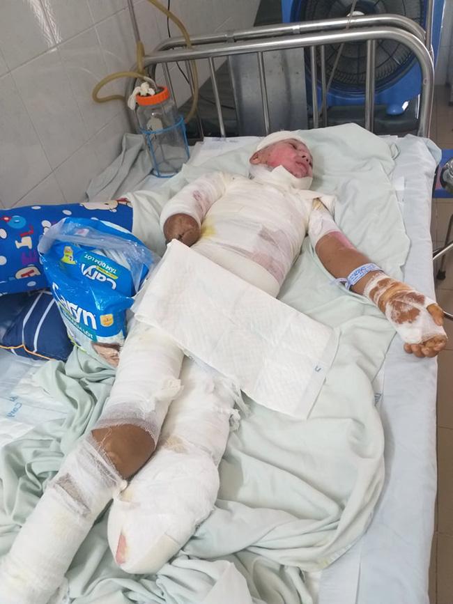 Trèo lên cột điện bắt chim, bé trai 12 tuổi bị điện giật phải cắt bỏ tay chân, tương lai mịt mù - ảnh 6