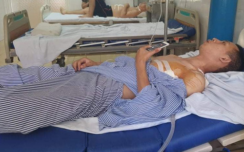 Bộ Công An gửi thư khen ngợi nam sinh viên tông xe vào kẻ cướp tiệm vàng, bị đâm phải phẫu thuật phổi