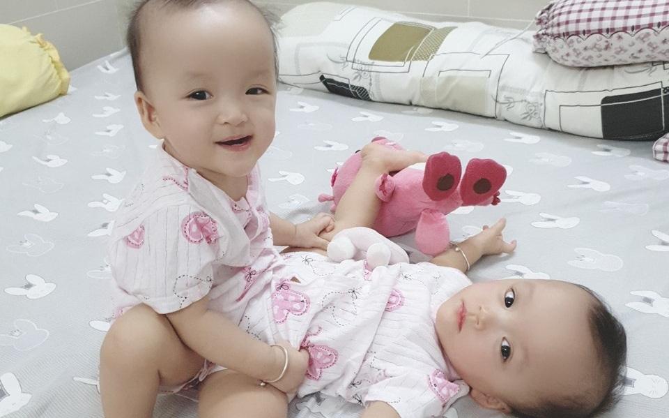 Sẵn sàng cho ca mổ tách dính 2 bé gái ''dùng chung một bỉm'' tại BV Nhi Đồng TP.HCM