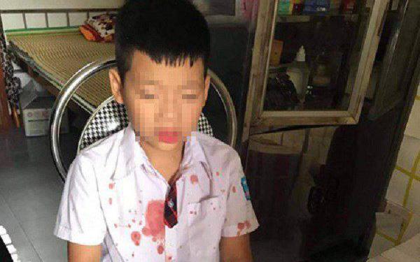 """Vụ người đàn ông đấm hộc máu mồm bé học sinh lớp 1 để """"trả thù"""" cho con: Nhà trường chính thức lên tiếng"""