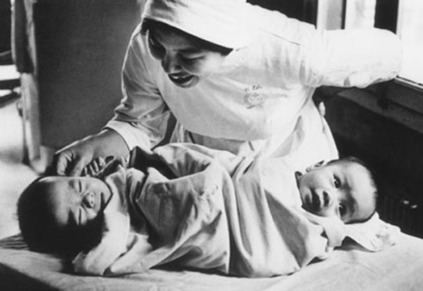 Nhìn lại ca phẫu thuật tách cặp song sinh Việt - Đức 32 năm trước: Ca mổ đi vào lịch sử y học Việt Nam - ảnh 6