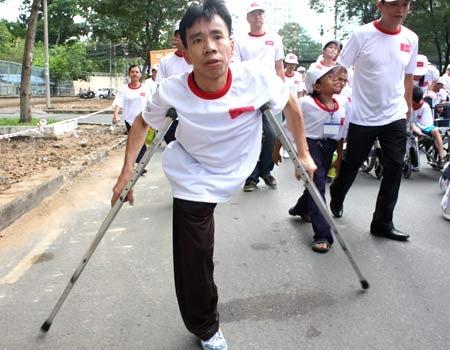 Nhìn lại ca phẫu thuật tách cặp song sinh Việt - Đức 32 năm trước: Ca mổ đi vào lịch sử y học Việt Nam - ảnh 15