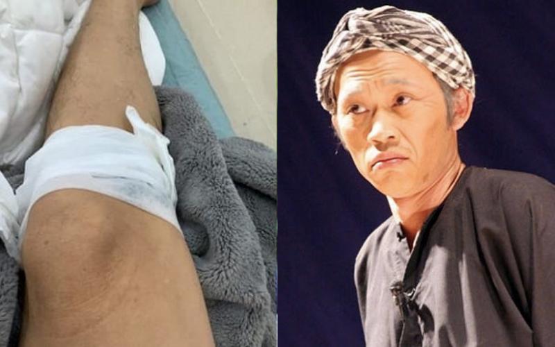 """Hoài Linh gặp tai nạn chảy máu chân vì bị gà đá khiến khán giả """"dở khóc dở cười"""""""
