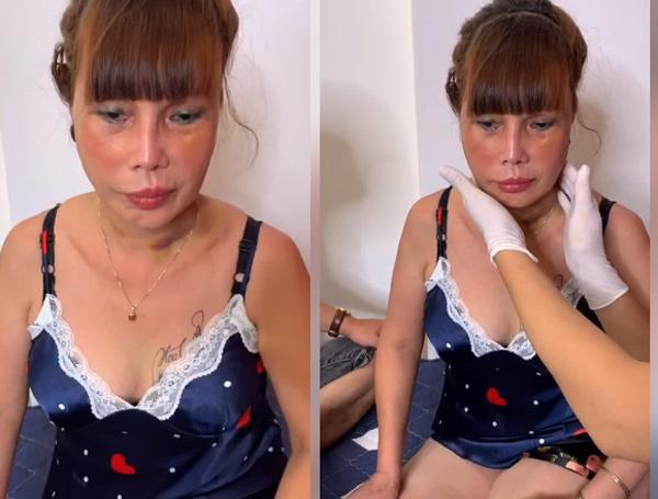 Xôn xao hình ảnh gương mặt sưng phù, biến dạng của cô dâu 62 tuổi và sự cưng nựng của chồng trẻ kém 36 tuổi gây bất ngờ - ảnh 5