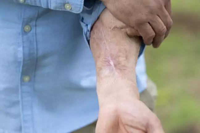 Người đàn ông bị bệnh rụng mất cậu nhỏ, phải nhờ các nhà khoa học cấy lại cái khác lên tay - Ảnh 2.