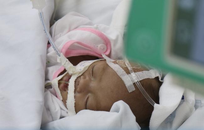 TP.HCM: Xót xa bé trai sơ sinh bệnh nặng bị cha mẹ bỏ rơi, bàn tay yếu ớt bấu chặt giường bệnh tìm sự sống - ảnh 3
