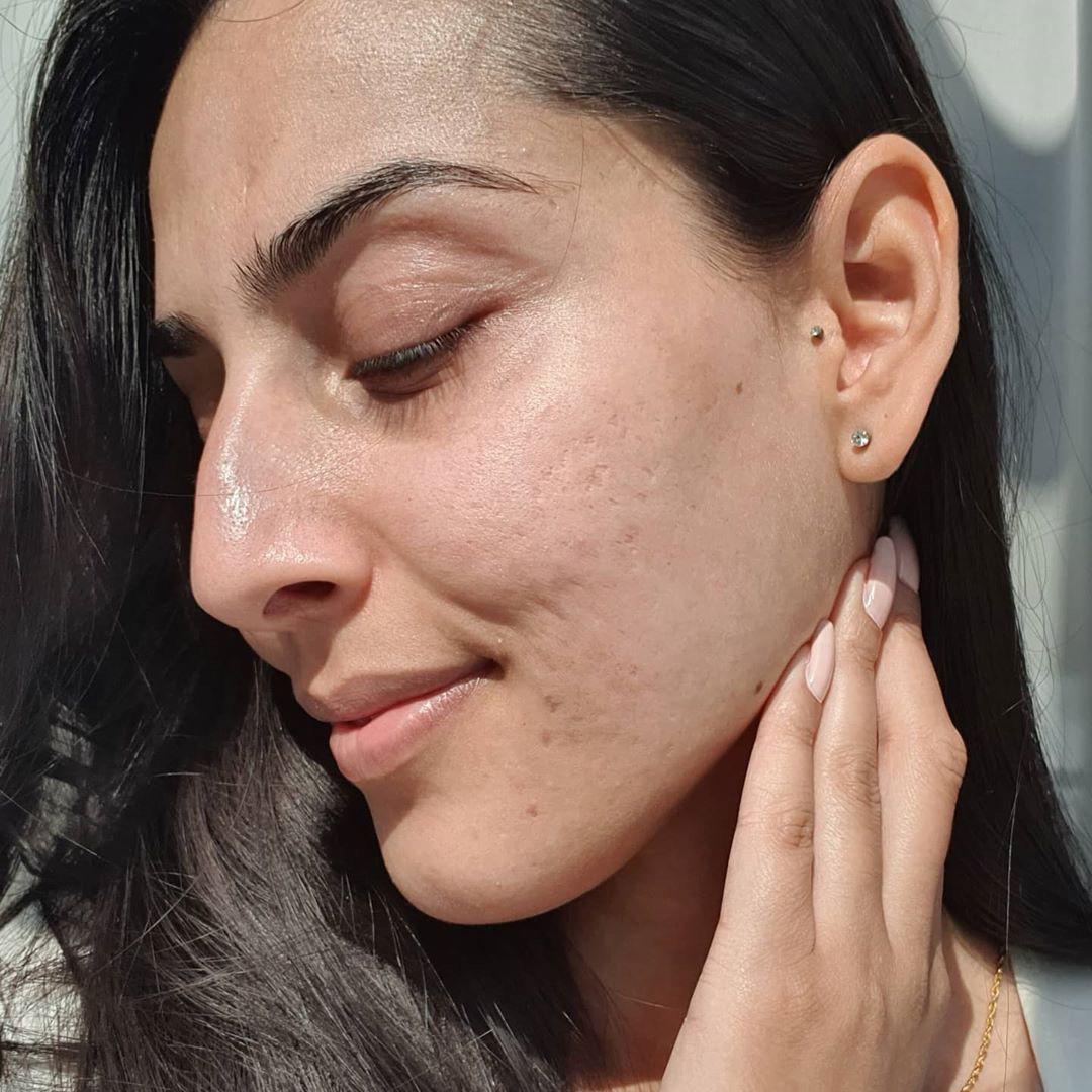Loại Vitamin siêu dưỡng ẩm dành cho da khô: Chống già ngang Vit C mà giá cực mềm, nên dùng ngay trong mùa Thu - Ảnh 3.