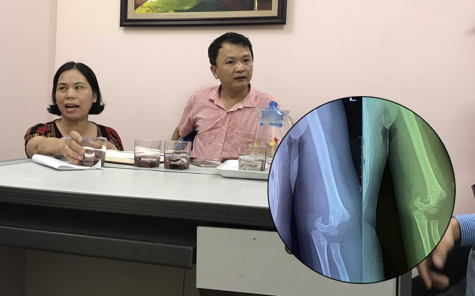 Nhà trường lên tiếng sau vụ bé gái 5 tuổi ngã gãy tay, nguy cơ bị liệt khi đang trong giờ học