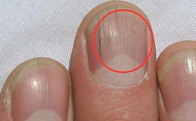 Quan sát đôi tay, nếu thấy có 3 tín hiệu xấu thì nên chú ý sức khỏe vì nguy cơ mắc bệnh về gan rất cao - ảnh 2