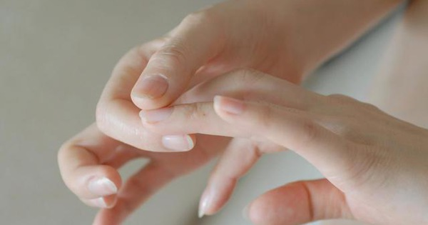 Quan sát đôi tay, nếu thấy có 3 tín hiệu xấu thì nên chú ý sức khỏe vì nguy cơ mắc bệnh về gan rất cao - ảnh 3