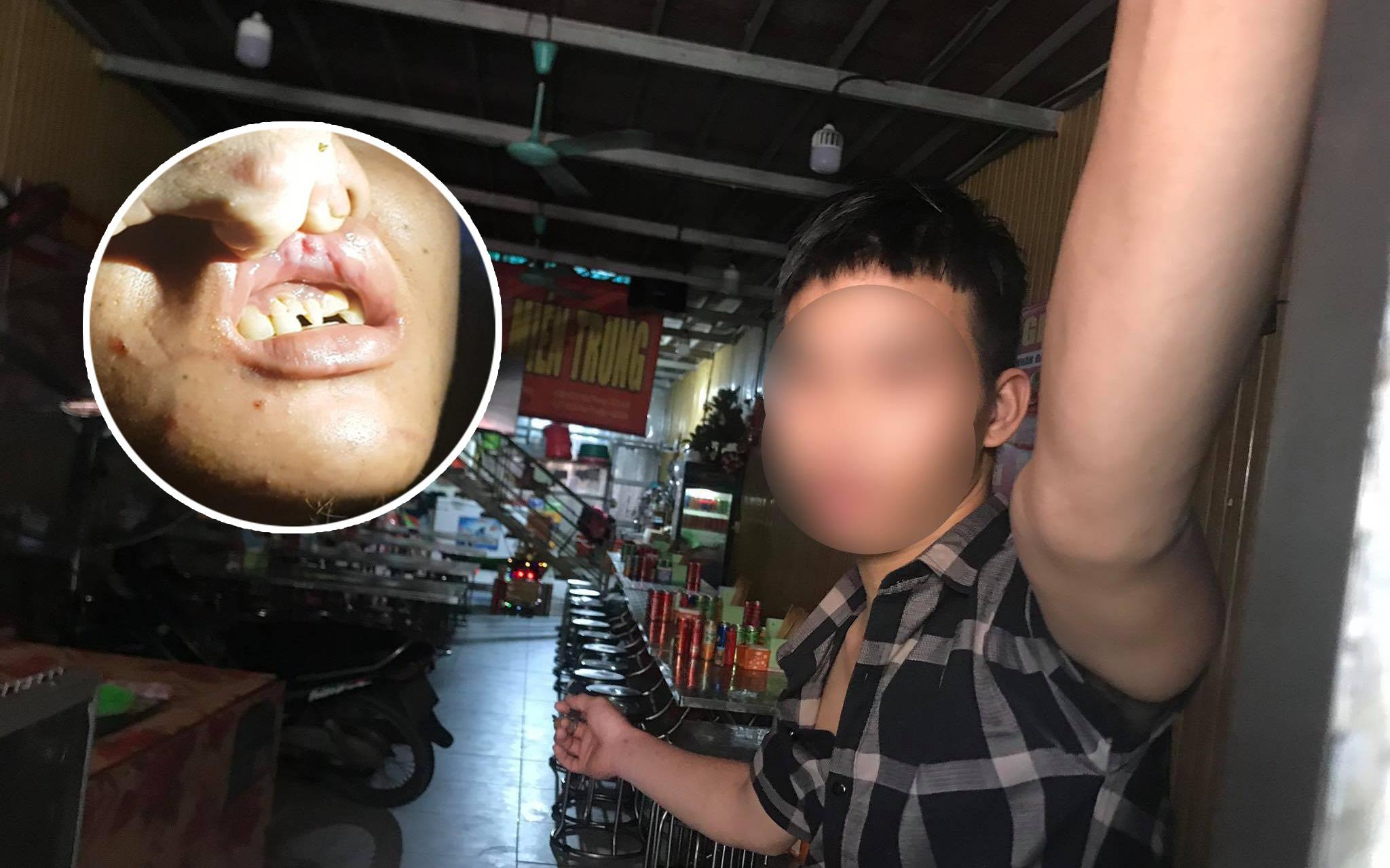 """Anh trai nhân viên 15 tuổi nghi bị chủ quán bánh xèo bạo hành dã man ở Bắc Ninh: """"Tôi rất xót xa!"""""""
