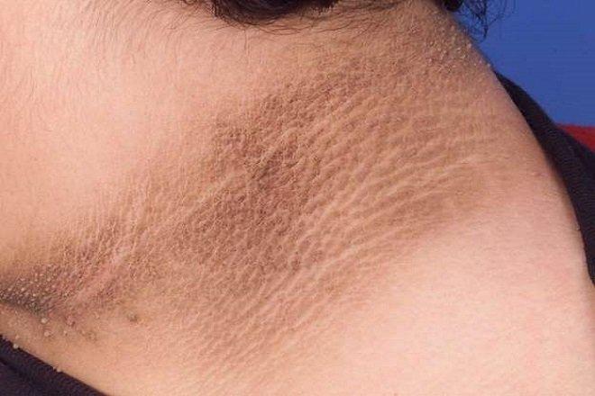 Cảnh giác với 4 dấu hiệu trên cổ cho thấy tế bào ung thư đã thức giấc - ảnh 2