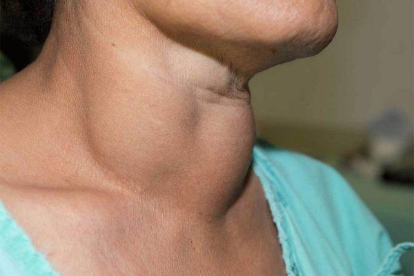 Cảnh giác với 4 dấu hiệu trên cổ cho thấy tế bào ung thư đã thức giấc - ảnh 3