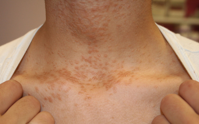 Cảnh giác với 4 dấu hiệu trên cổ cho thấy tế bào ung thư đã thức giấc - ảnh 4
