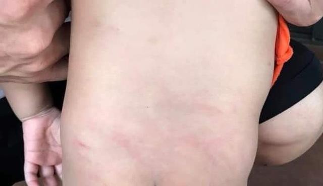 Đến đón con tan học, bà mẹ Quảng Ninh bức xúc thấy con bị cô mẫu giáo buộc vào ghế đánh, lưng và mông chằng chịt vết lằn đỏ - ảnh 1