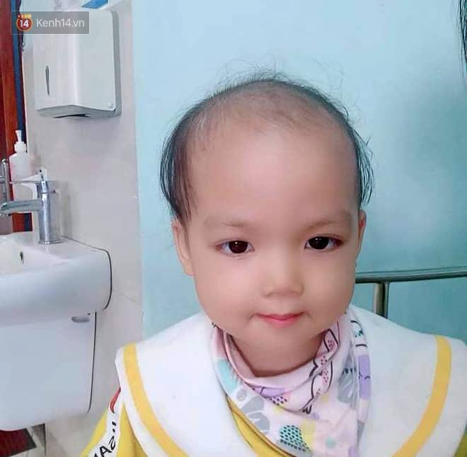 Bé gái 4 tuổi bị ung thư phải cắt bỏ 1 bên thận và câu nói nhói lòng trước ca xạ trị: Bố mẹ đừng khóc, con không đau đâu - Ảnh 6.