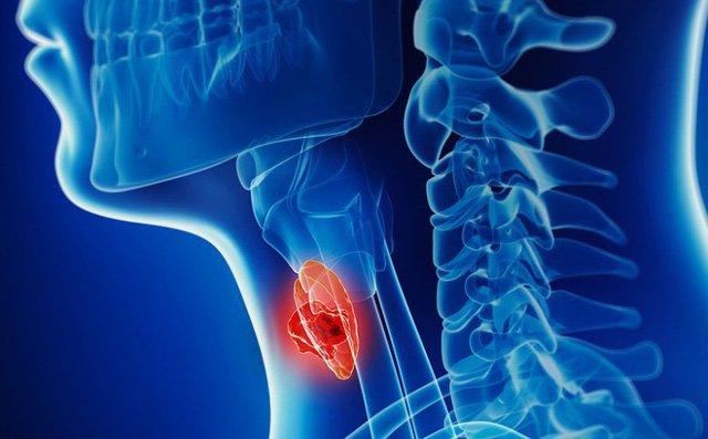 Tìm hiểu về ung thư hạ họng: căn bệnh nghệ sĩ Giang Còi đang mắc xuất phát từ những thói quen mà ai cũng có khả năng phạm phải - Ảnh 5.