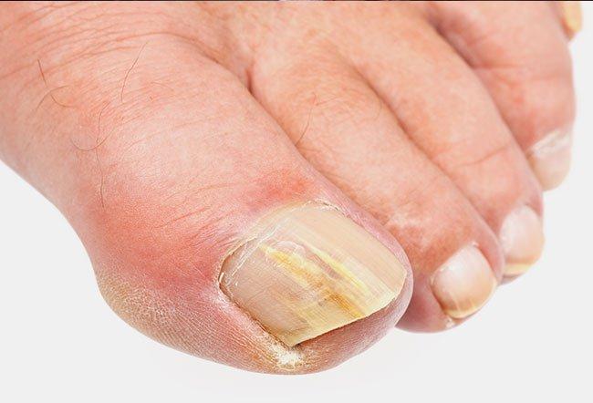 Những cơn ác mộng ở ngón chân và cách xử lý: Móng chọc vào thịt, nấm móng, móng đổi màu - ảnh 1