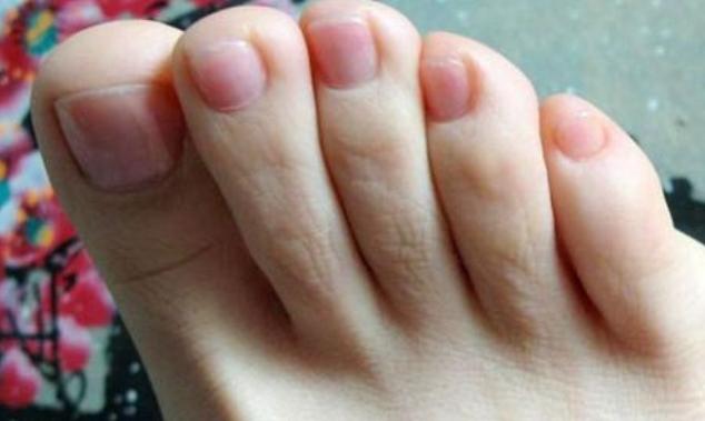 3 bất thường ở ngón chân đang cảnh báo bạn rằng tế bào ung thư đã bắt đầu thức dậy, cần đi khám ngay - ảnh 1