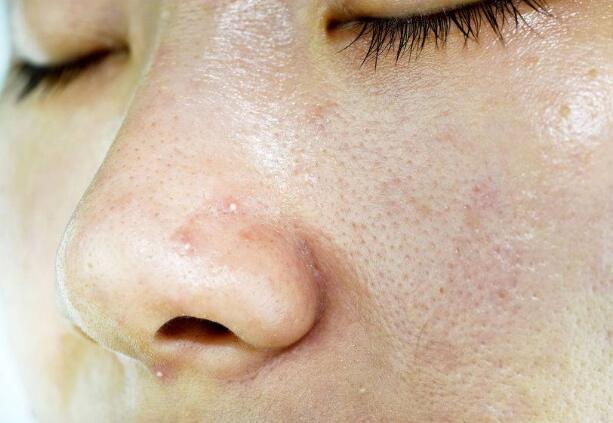 Cơ thể có 4 loại bất thường chứng tỏ estrogen đang không đủ, ăn thêm 4 thứ để dưỡng da, giảm nếp nhăn - ảnh 3