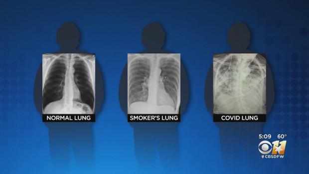 BS so sánh 3 lá phổi: Bệnh nhân Covid-19 có hậu quả tổn thương nghiêm trọng hơn, bị sẹo phổi - ảnh 1