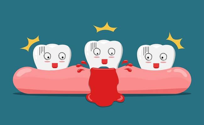 3 dấu hiệu bất thường trong khoang miệng ngầm cảnh báo nguy cơ mắc bệnh về gan cao - ảnh 2