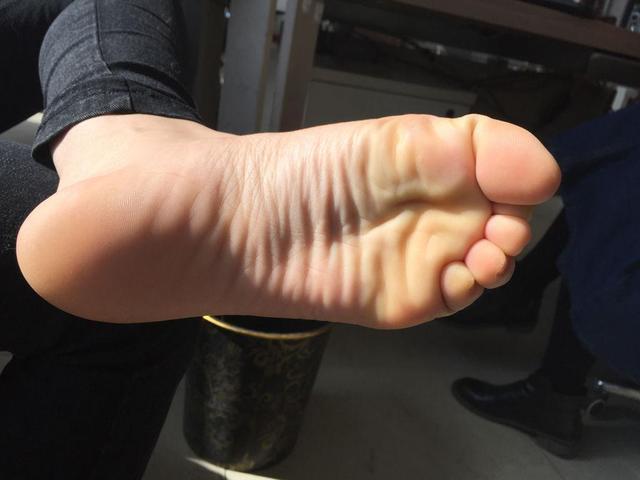 Gan xấu thì chân sẽ xuất hiện 3 vấn đề bất thường, nếu không có thì xin chúc mừng vì gan bạn vẫn ổn - ảnh 2