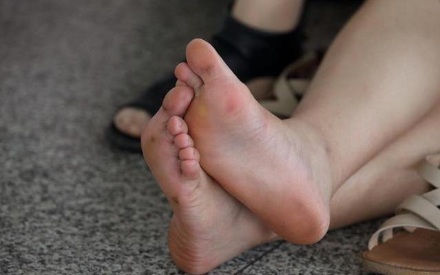 Gan xấu thì chân sẽ xuất hiện 3 vấn đề bất thường, nếu không có thì xin chúc mừng vì gan bạn vẫn ổn