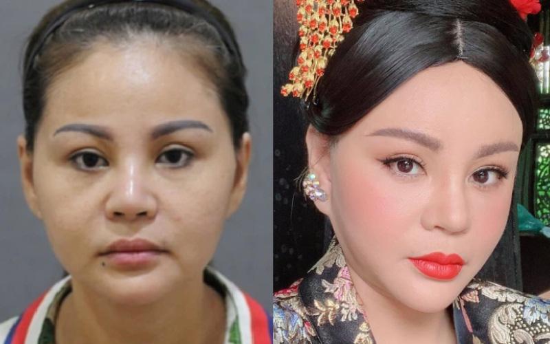 """""""Nữ hoàng dao kéo"""" Lê Giang kể về kỉ lục phẫu thuật thẩm mỹ: """"Tôi sửa mũi 10 lần, mắt 1 lần, cằm 2 lần, lấy cả sụn tai đắp vào mũi"""""""