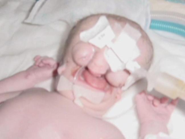 """Bé gái sinh ra """"không có mặt"""" khiến cả thế giới ngỡ ngàng gây bất ngờ với diện mạo và cuộc sống sau nhiều năm - Ảnh 1."""