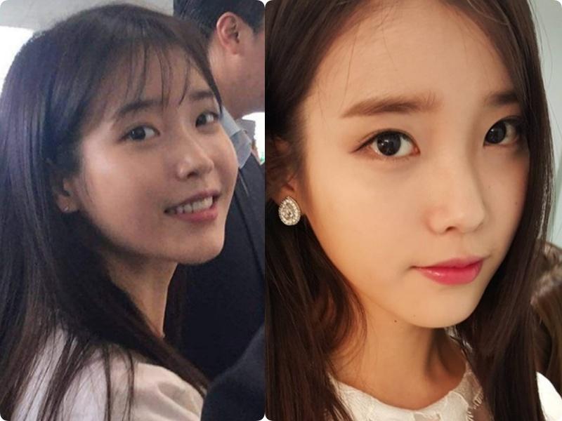 Sao Hàn từ da đen nhẻm lột xác trắng mịn, hồng hào: Đến Yoona cũng phải có chiêu dưỡng trắng riêng mình - Ảnh 2.