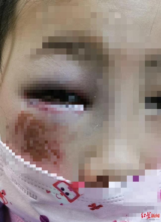 Bé gái 8 tuổi bị cô giáo đánh đến mức suýt mù chỉ vì làm Toán sai, hình ảnh được chia sẻ khiến phụ huynh phẫn nộ - Ảnh 1.
