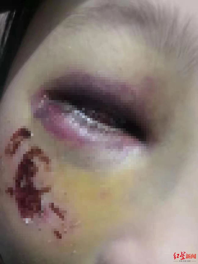 Bé gái 8 tuổi bị cô giáo đánh đến mức suýt mù chỉ vì làm Toán sai, hình ảnh được chia sẻ khiến phụ huynh phẫn nộ - Ảnh 2.