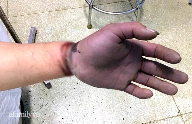 Cứu thanh niên gặp tai nạn kinh hoàng, cuộn kẽm siết chặt cổ tay đứt toàn bộ gân cơ duỗi - ảnh 1