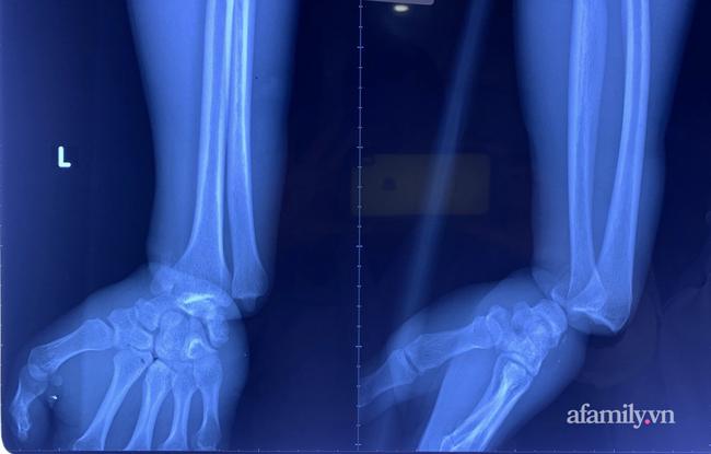 Cứu thanh niên gặp tai nạn kinh hoàng, cuộn kẽm siết chặt cổ tay đứt toàn bộ gân cơ duỗi - ảnh 2