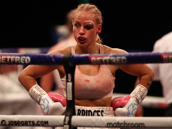 Nữ võ sĩ xinh đẹp bị đánh biến dạng mặt khi tham gia trận tranh đai thế giới - Ảnh 2.