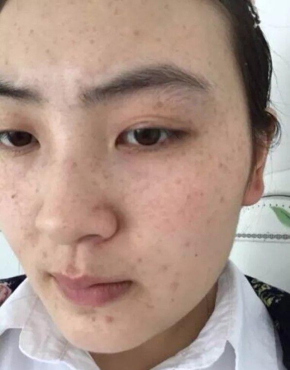 3 biểu hiện xấu xí trên khuôn mặt cho thấy buồng trứng của bạn đang lão hóa sớm, cần được chăm sóc càng sớm càng tốt - ảnh 1