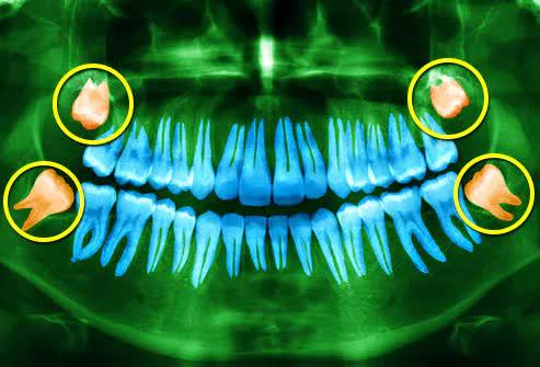 Răng khôn là gì mà khiến Phí Phương Anh ví như mối tình đầu làm mình đau? - ảnh 2