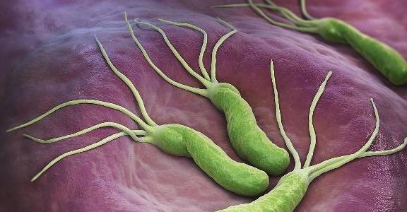 3 loại thực phẩm là kẻ thù của vi khuẩn Helicobacter pylori, ăn thường xuyên bệnh dạ dày sẽ không dám bén mảng đến gần - Ảnh 1.