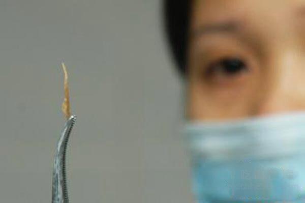 Người đàn ông 45 tuổi tử vong sau 3 ngày bị hóc xương cá ở cổ họng, bác sĩ chỉ ra 3 bước có thể cứu sống bạn khi gặp trường hợp tương tự - ảnh 6