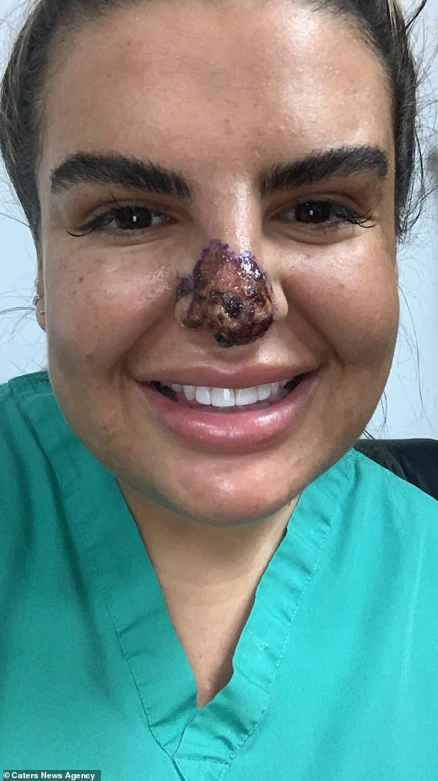 Tiêm filler hỏng suýt rụng mũi và môi, cô gái stress tới nỗi không dám mò mặt ra đường - Ảnh 3.