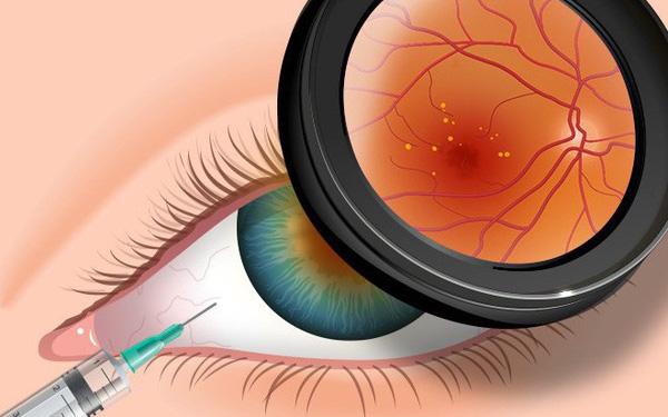 3 biểu hiện bất thường ở đôi mắt ngầm cảnh báo nguy cơ mắc bệnh tiểu đường rất cao mà bạn cần chú ý - ảnh 1