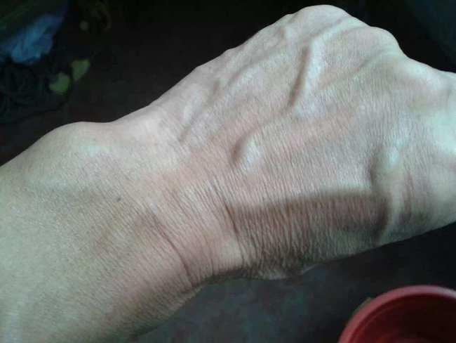 Người gan kém thường có 3 thay đổi bất thường ở bàn tay, đi khám ngay vì rất dễ là dấu hiệu của ung thư gan - ảnh 1